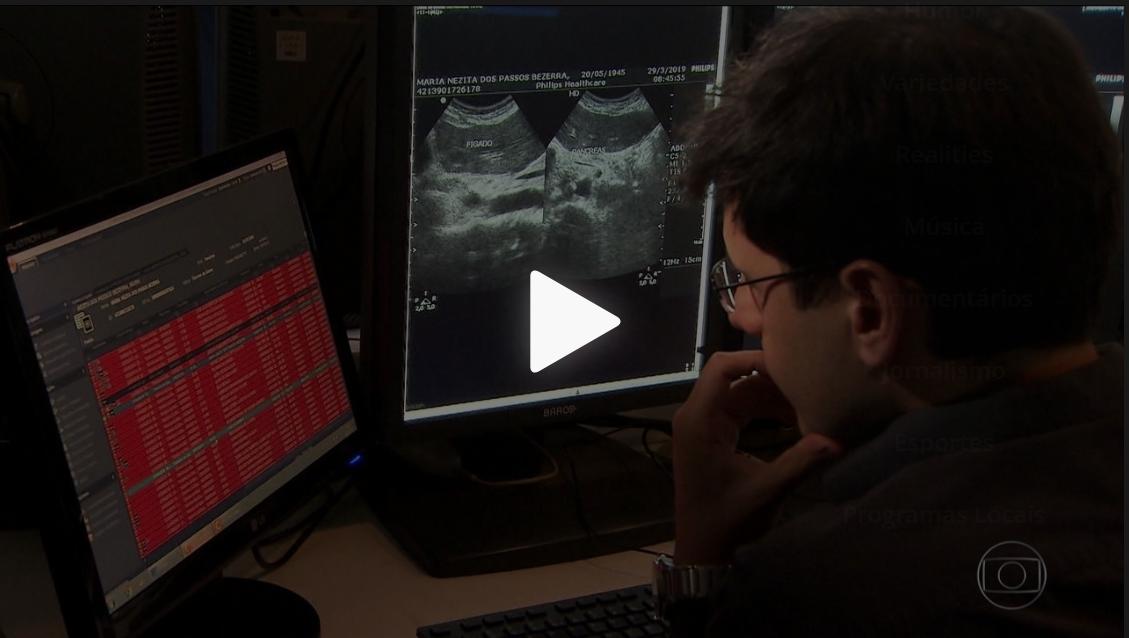 Inteligência artificial agiliza exames de imagens em hospitais de SP e GO